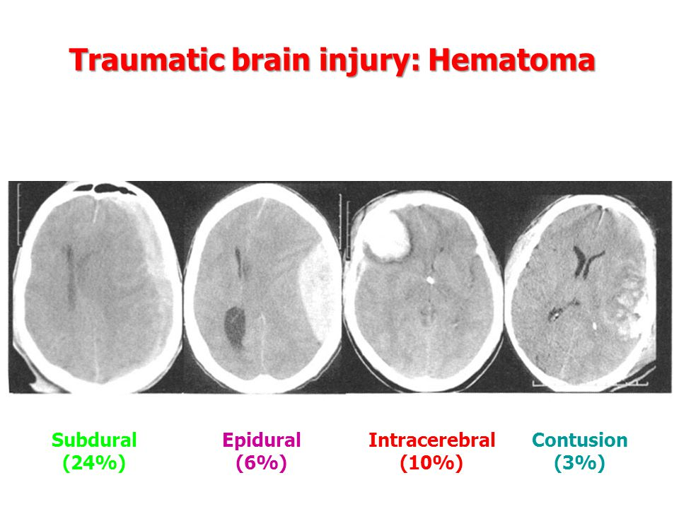 Traumatic brain injury: Hematoma