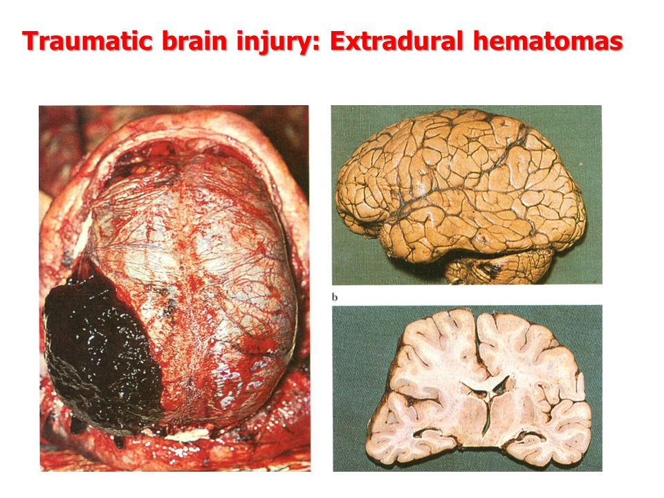 Traumatic brain injury: Extradural hematomas