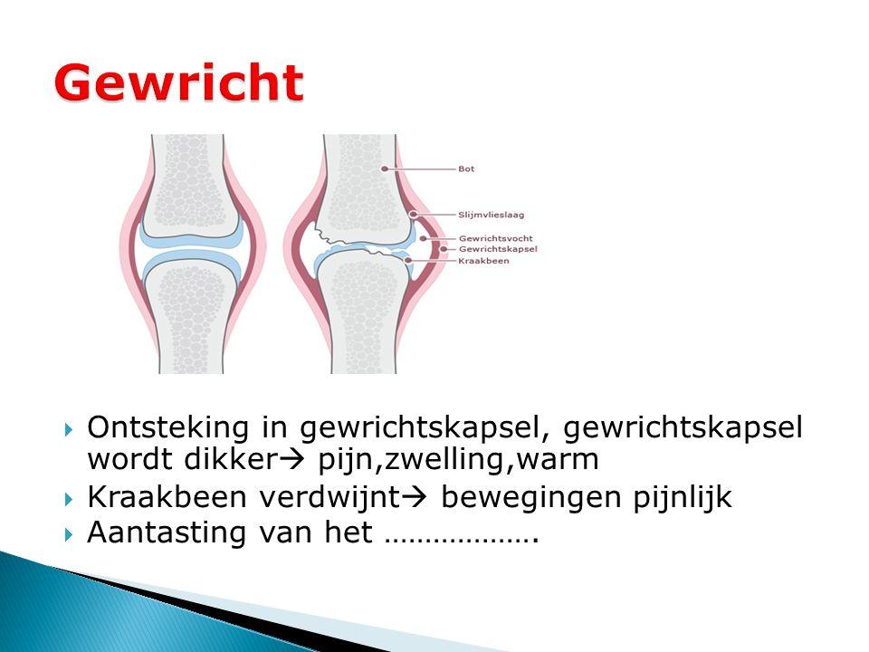 Gewricht Ontsteking in gewrichtskapsel, gewrichtskapsel wordt dikker pijn,zwelling,warm. Kraakbeen verdwijnt bewegingen pijnlijk.