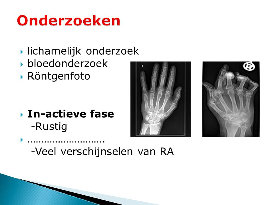Onderzoeken lichamelijk onderzoek bloedonderzoek Röntgenfoto