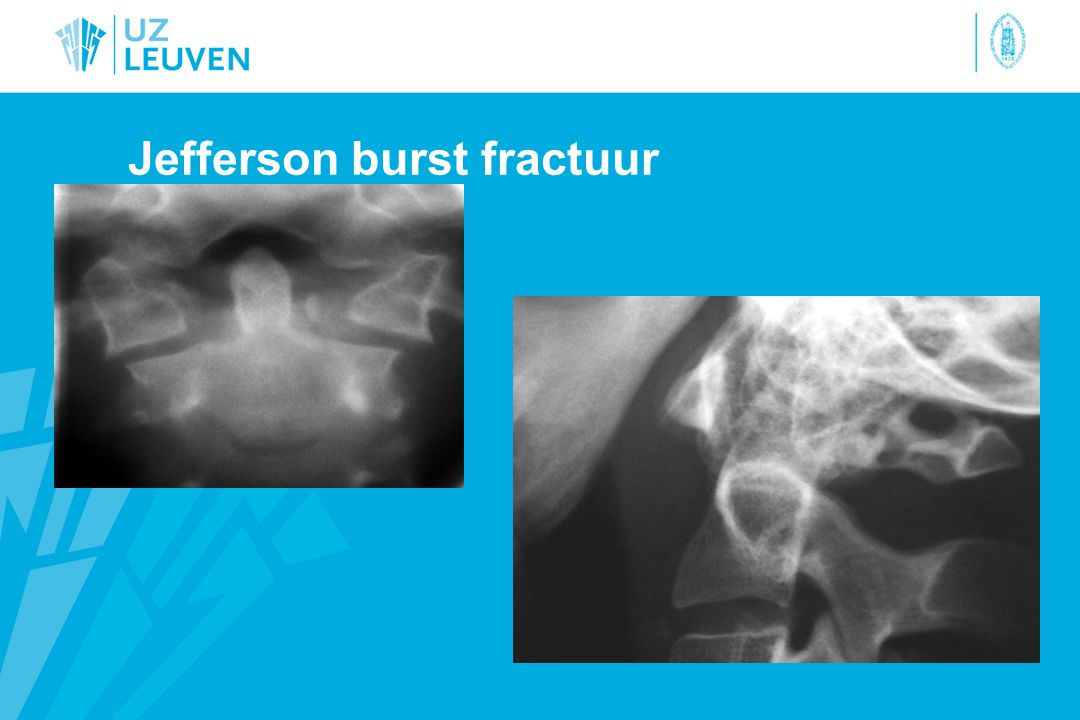 Jefferson burst fractuur