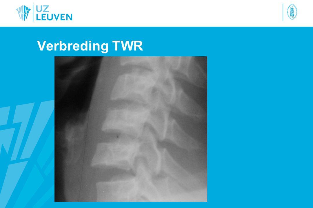 Verbreding TWR