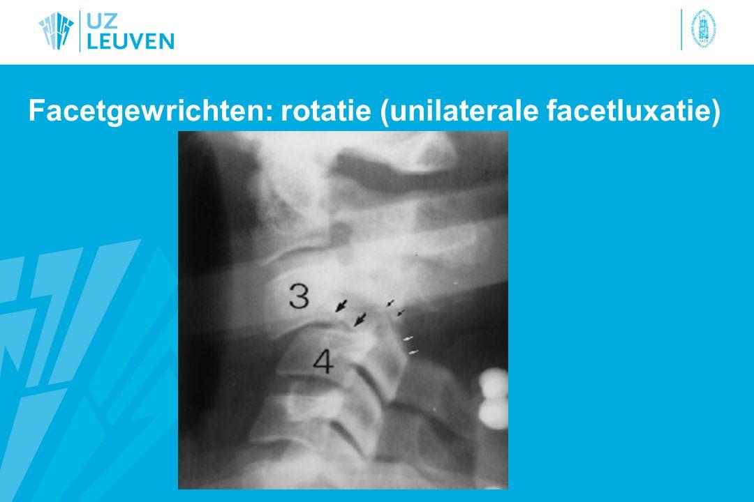 Facetgewrichten: rotatie (unilaterale facetluxatie)