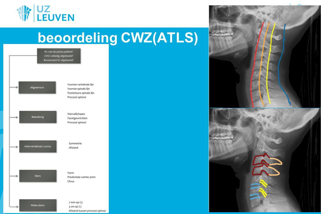 beoordeling CWZ(ATLS)