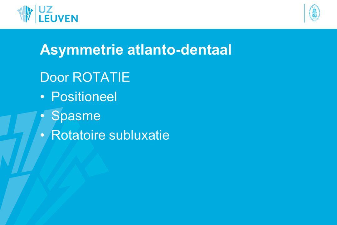 Asymmetrie atlanto-dentaal