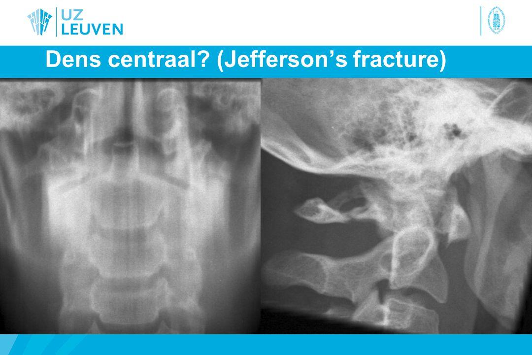 Dens centraal (Jefferson's fracture)