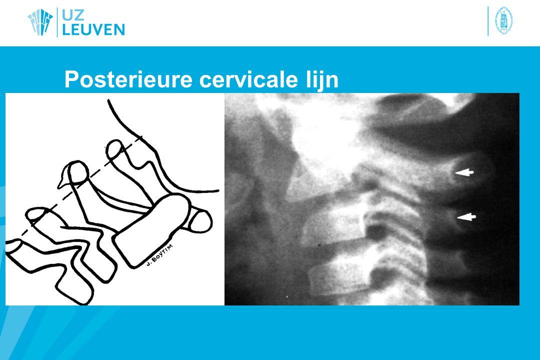 Posterieure cervicale lijn