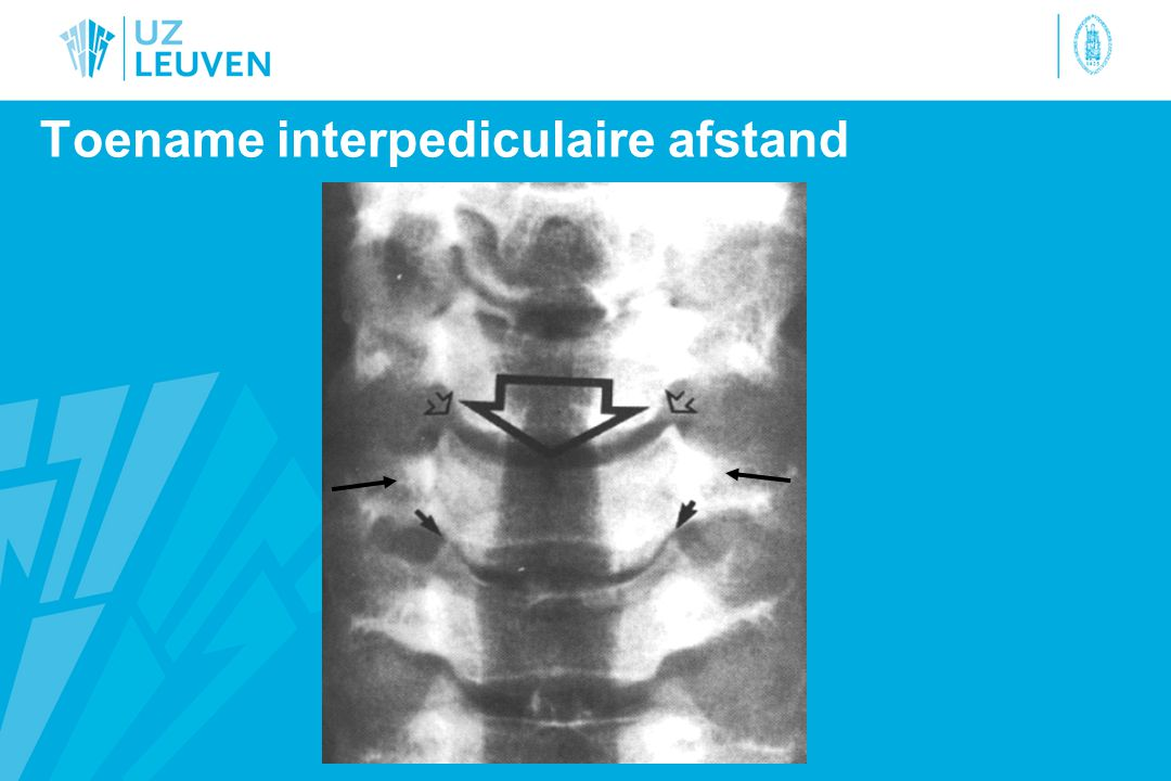 Toename interpediculaire afstand
