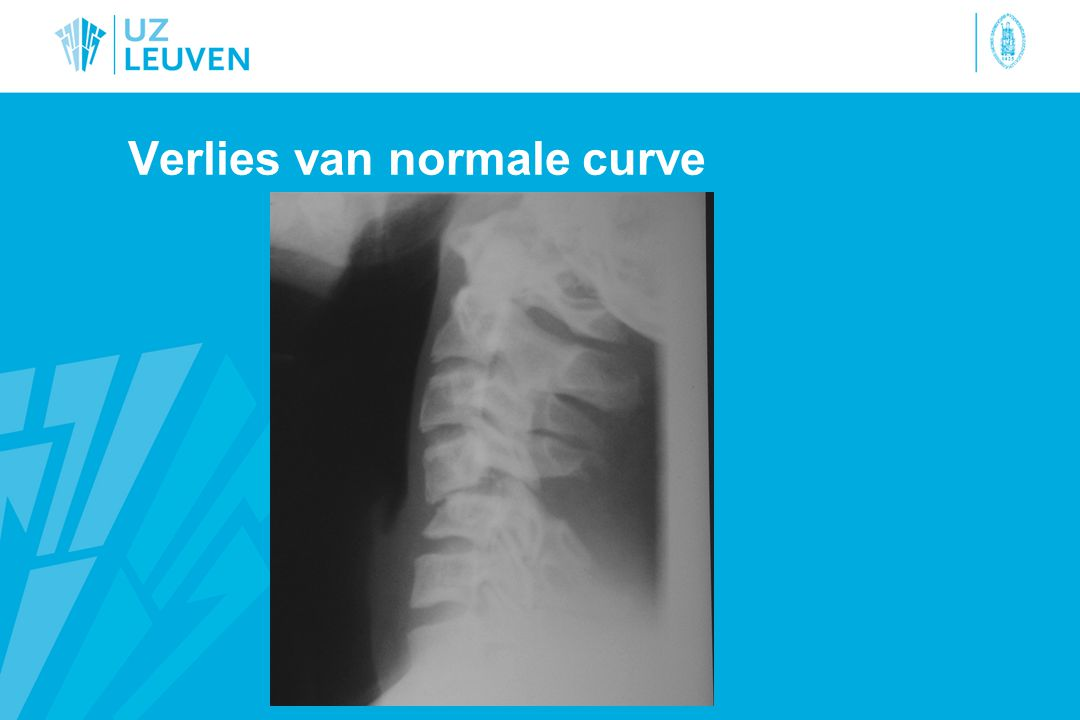 Verlies van normale curve