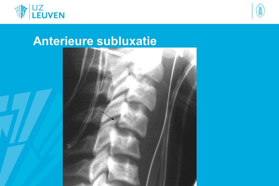 Anterieure subluxatie