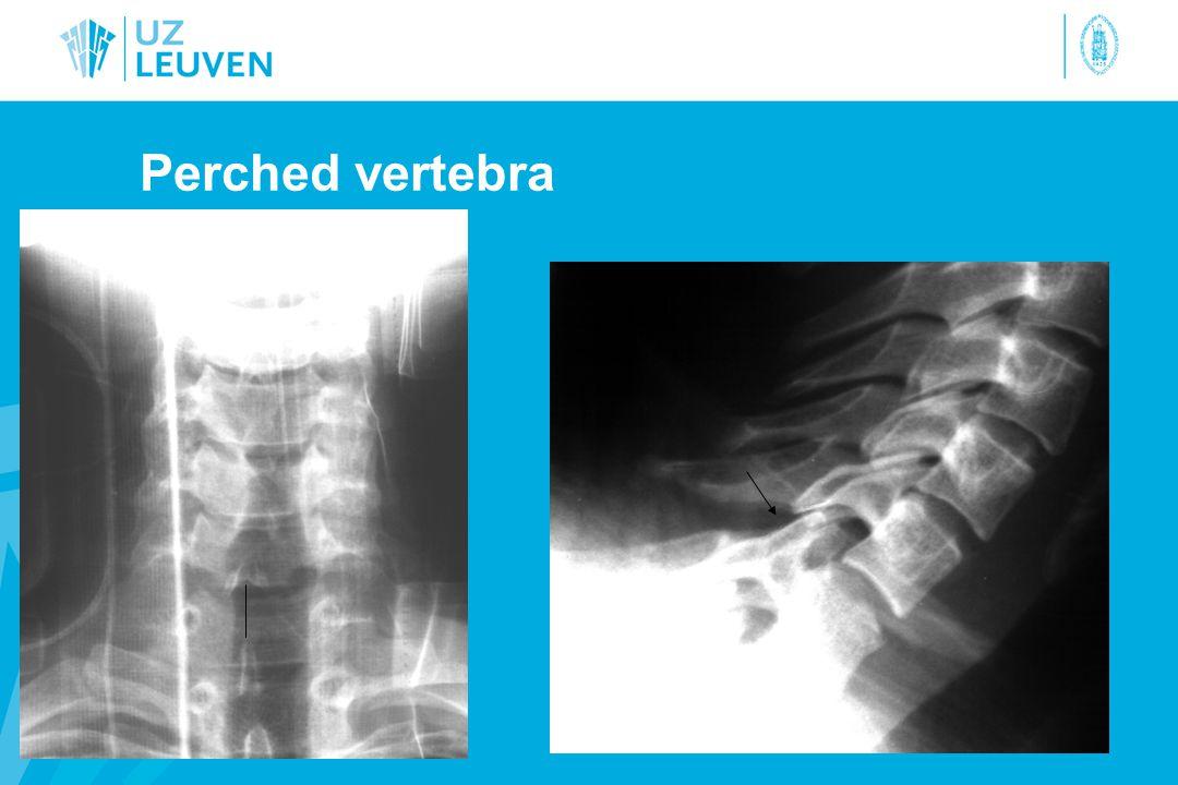Perched vertebra