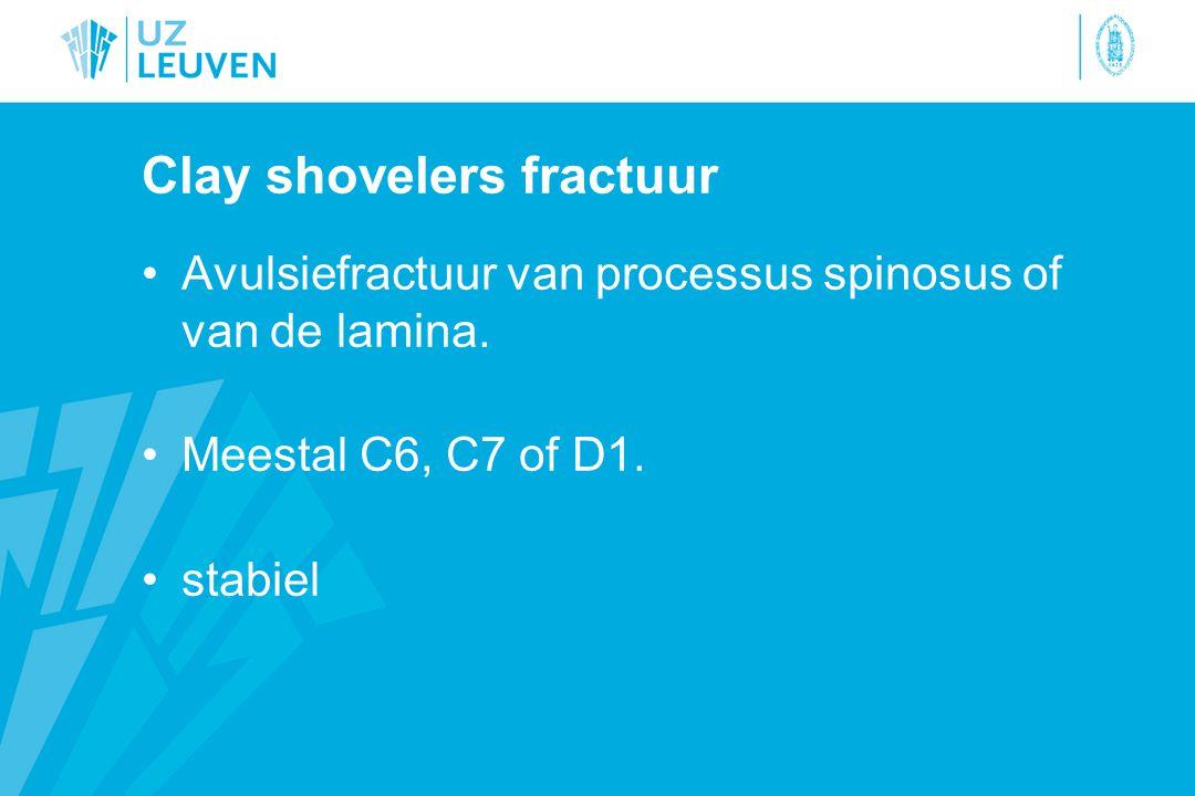 Clay shovelers fractuur