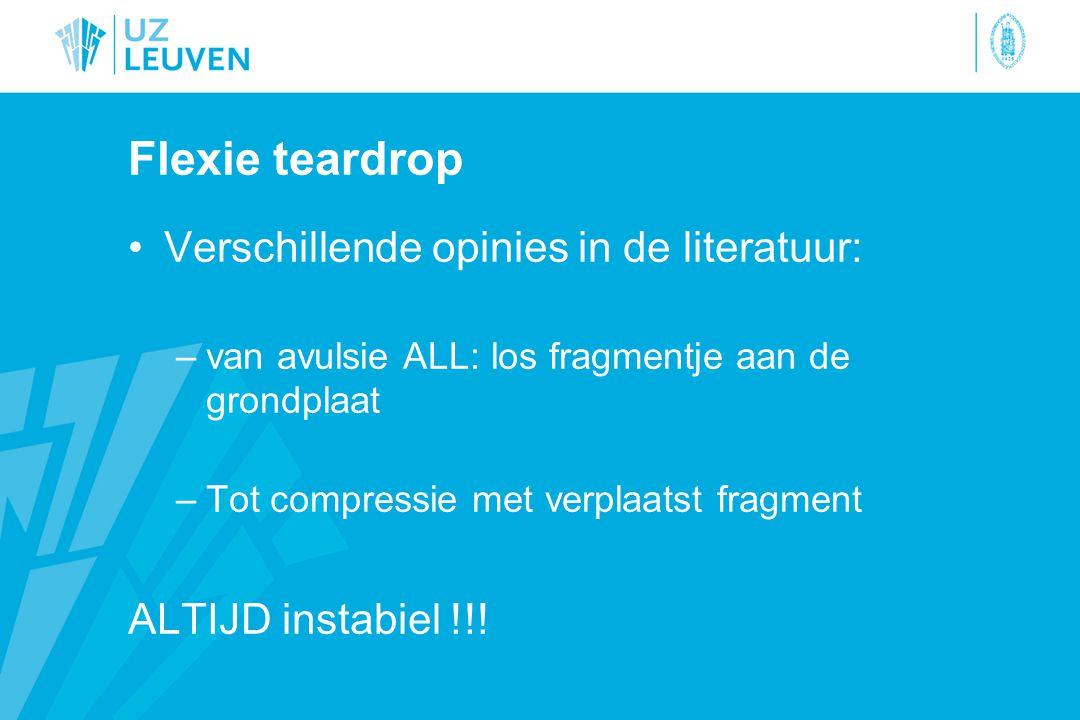 Flexie teardrop Verschillende opinies in de literatuur: