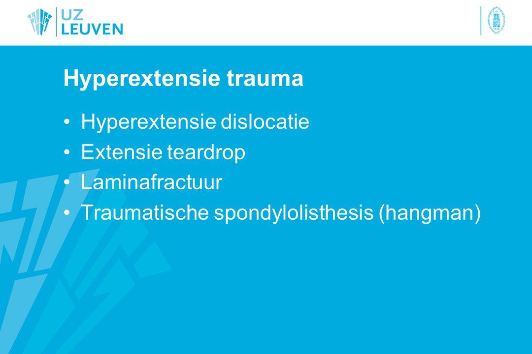 Hyperextensie trauma Hyperextensie dislocatie Extensie teardrop
