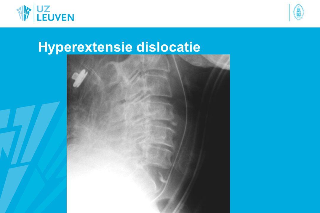 Hyperextensie dislocatie