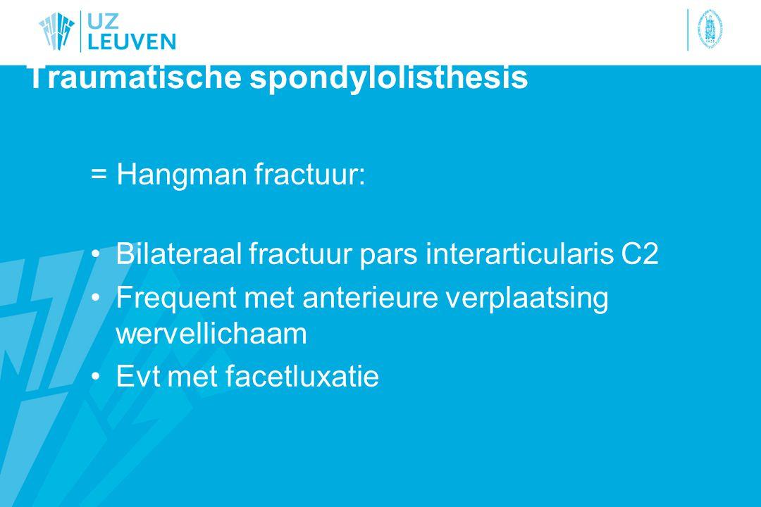 Traumatische spondylolisthesis