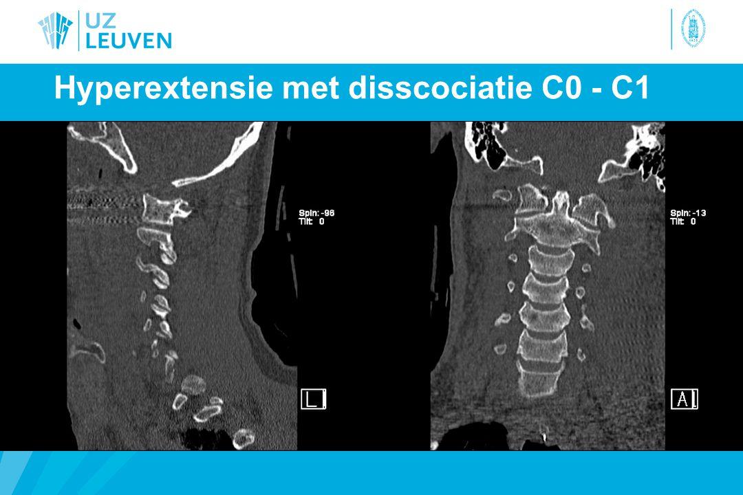 Hyperextensie met disscociatie C0 - C1
