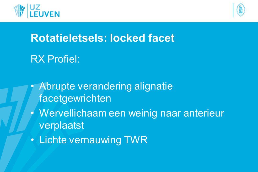 Rotatieletsels: locked facet