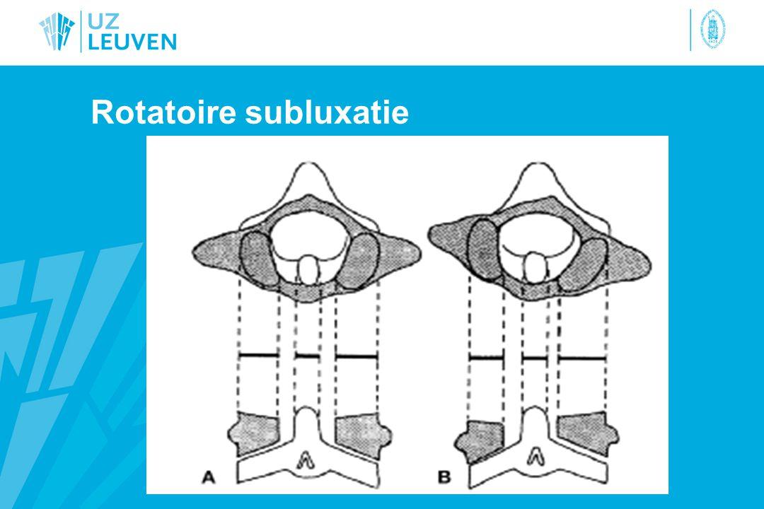 Rotatoire subluxatie
