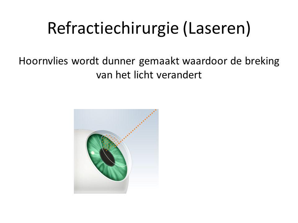 Refractiechirurgie (Laseren)