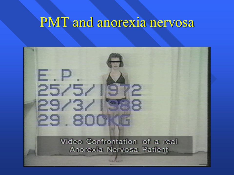 PMT and anorexia nervosa