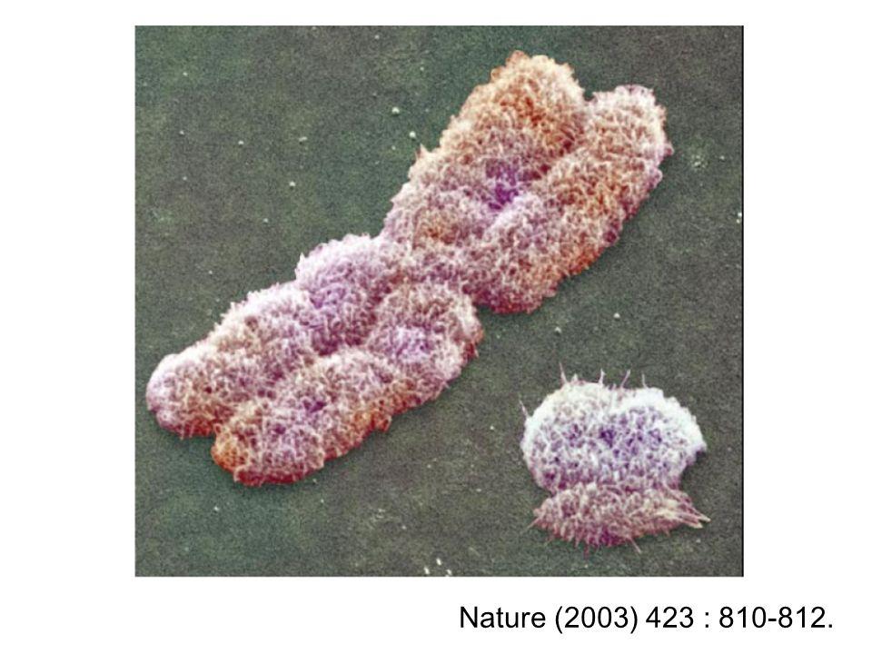Menselijke geslachtschromosomen