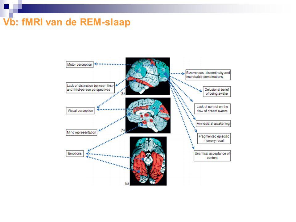 Vb: fMRI van de REM-slaap