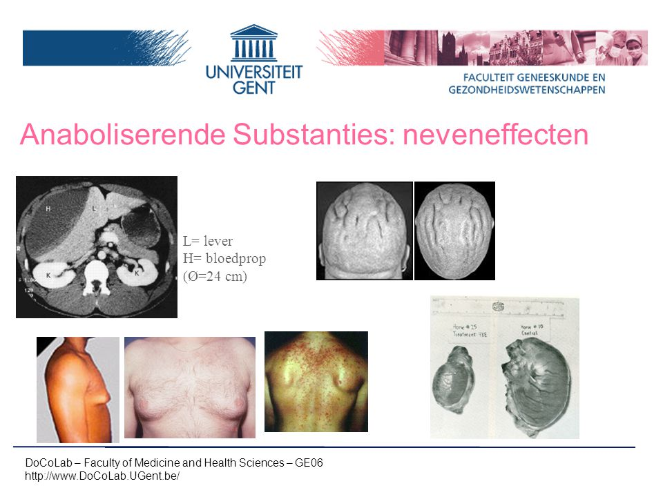 Anaboliserende Substanties: neveneffecten
