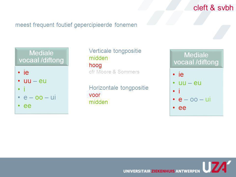 cleft & svbh meest frequent foutief gepercipieerde fonemen