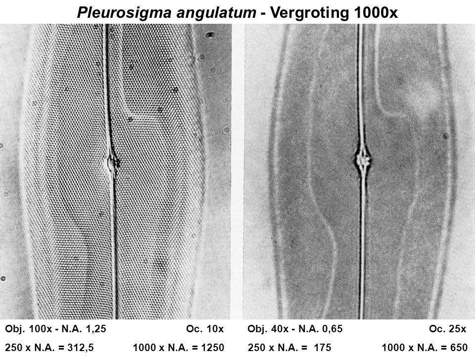 Pleurosigma angulatum - Vergroting 1000x