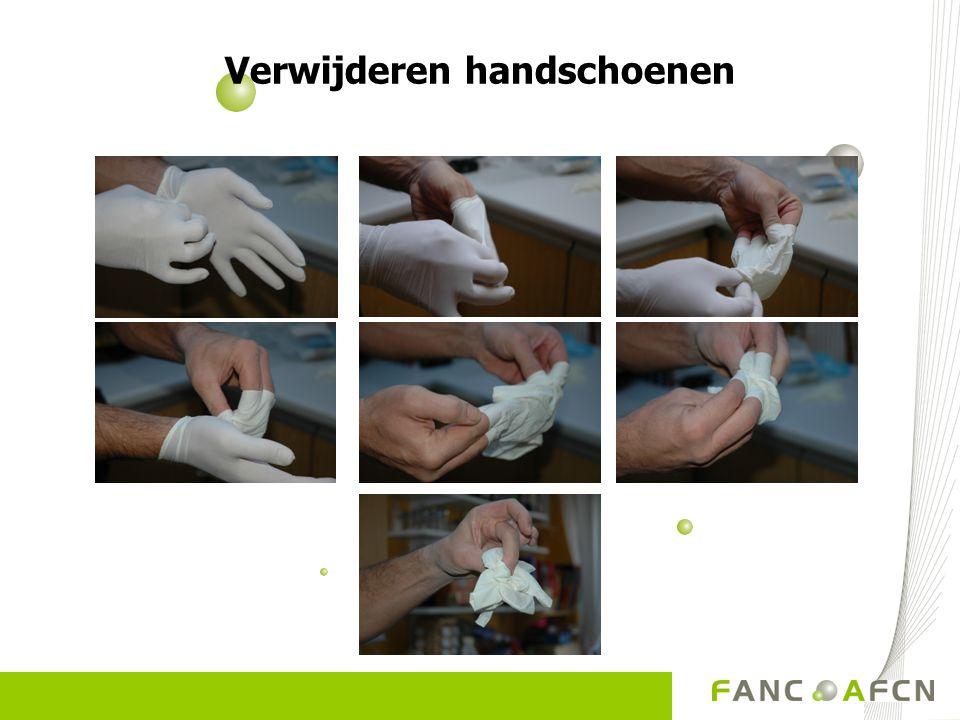 Verwijderen handschoenen