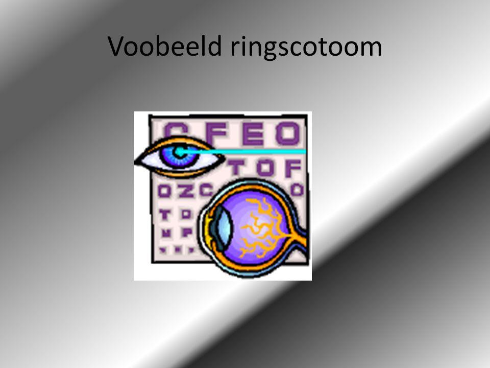 Voobeeld ringscotoom