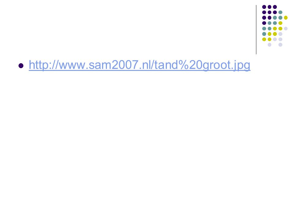 http://www.sam2007.nl/tand%20groot.jpg