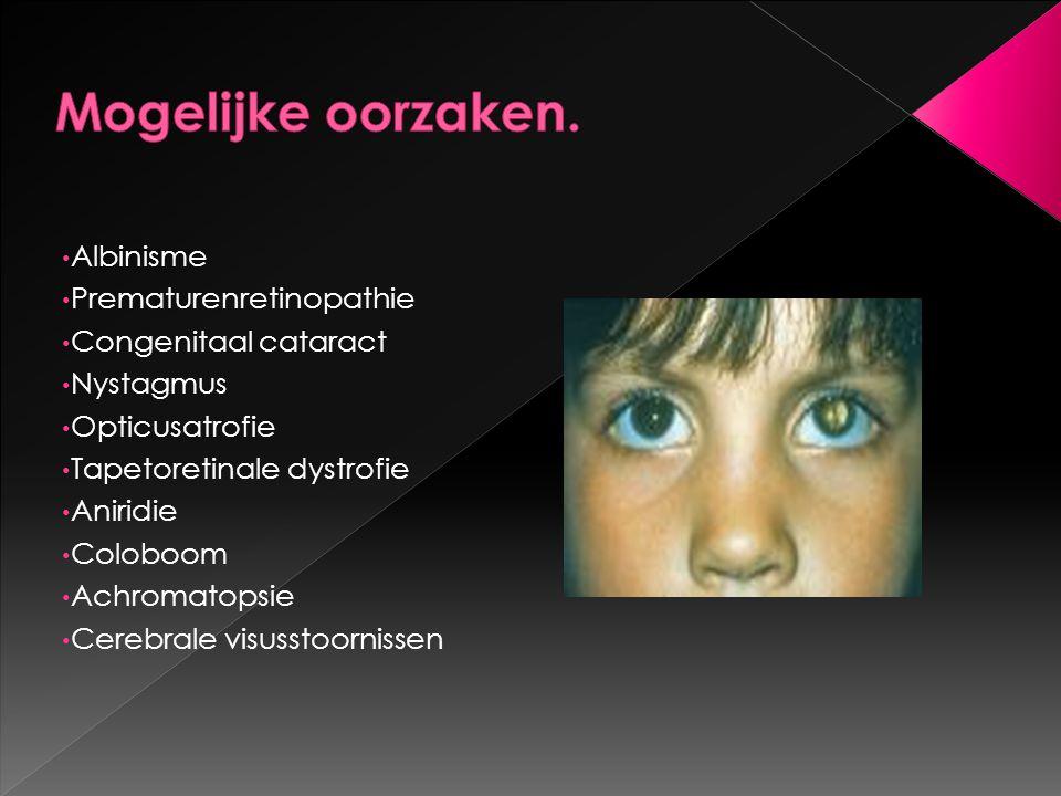 Mogelijke oorzaken. Albinisme Prematurenretinopathie