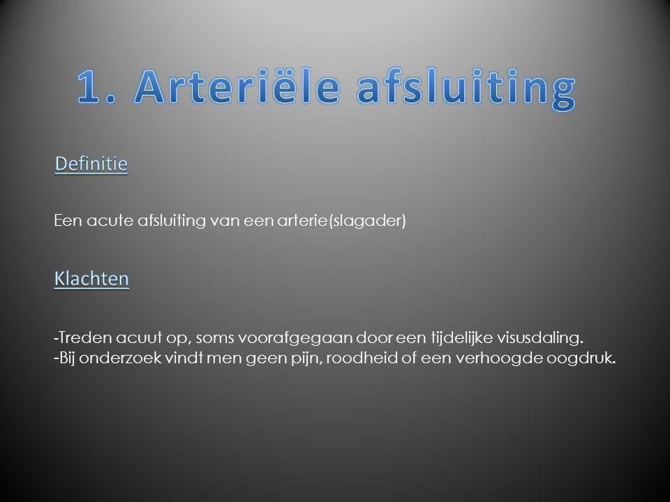 1. Arteriële afsluiting Definitie Klachten