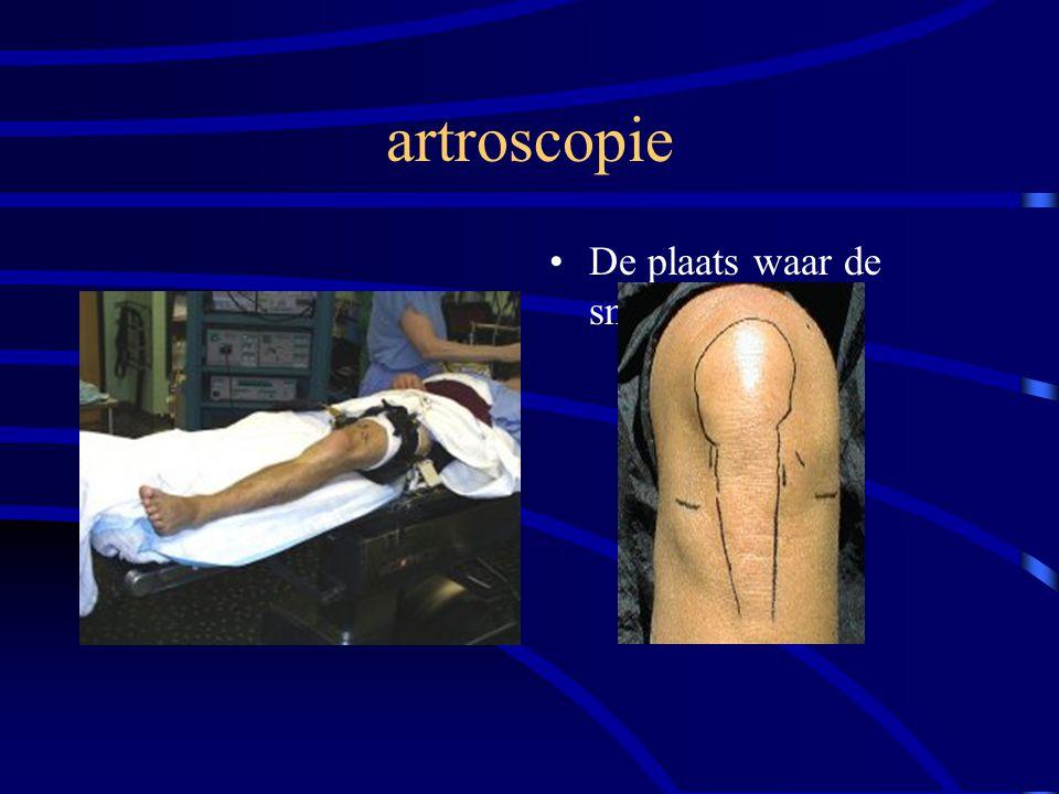 artroscopie De plaats waar de sneetjes komen