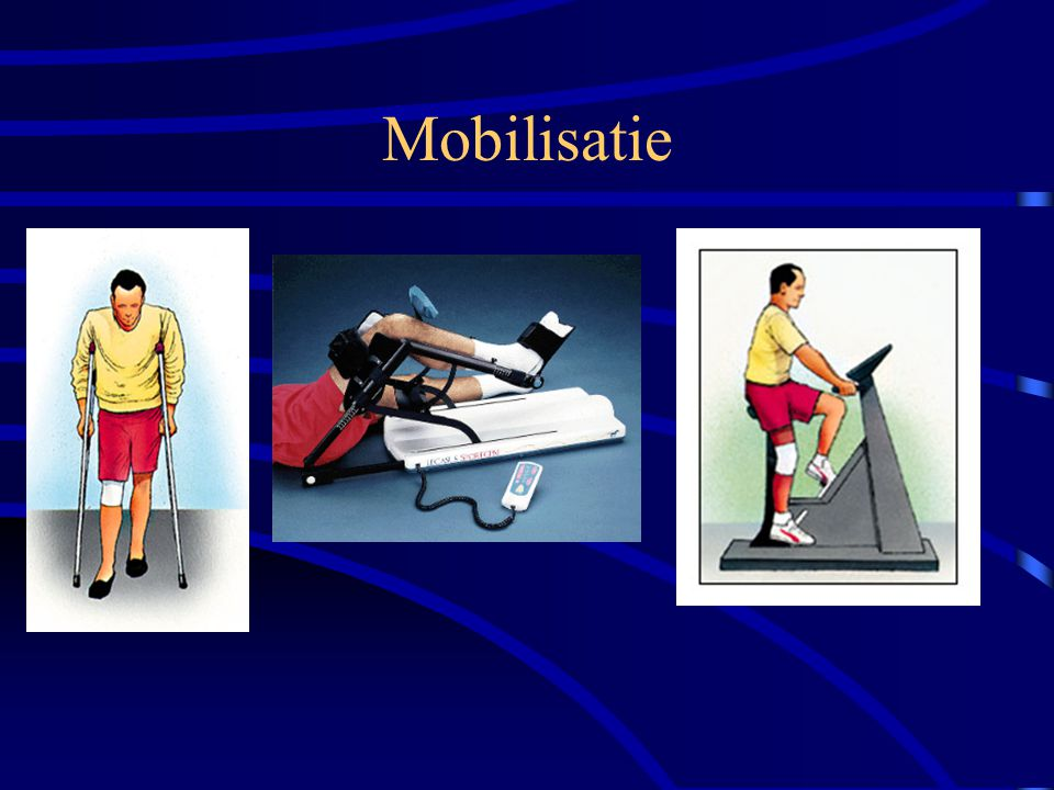 Mobilisatie