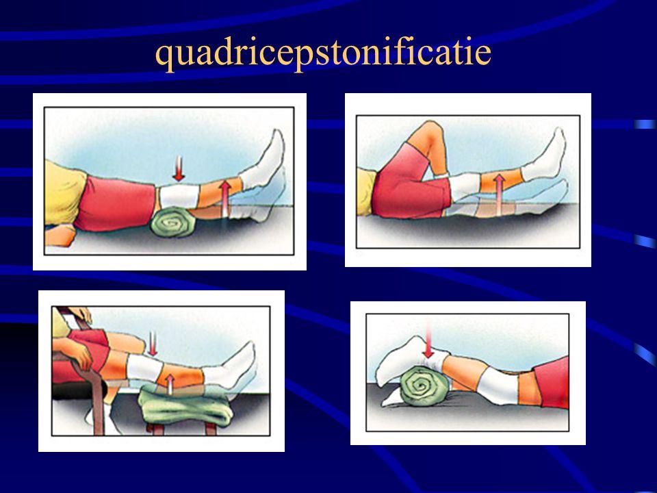quadricepstonificatie