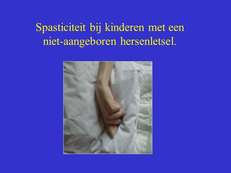 Spasticiteit bij kinderen met een niet-aangeboren hersenletsel.