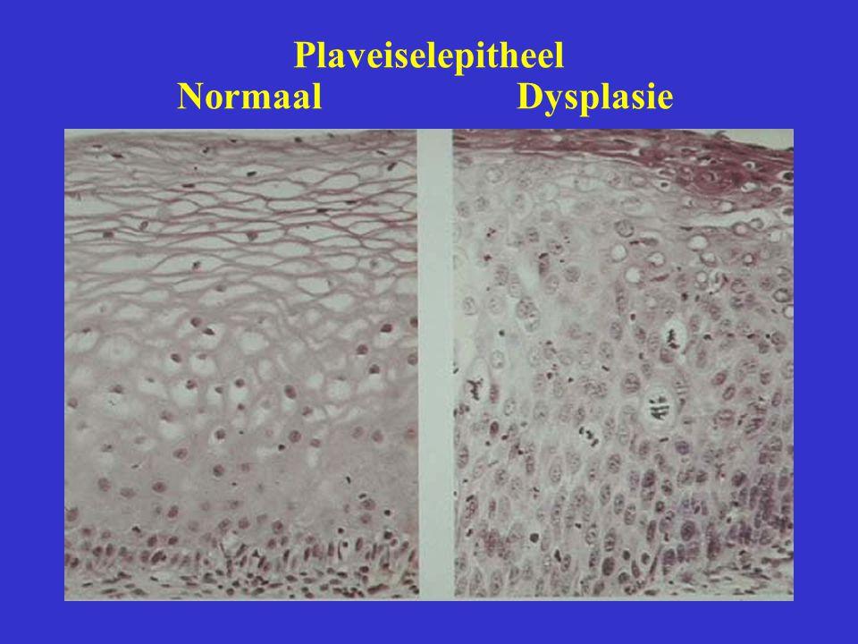 Plaveiselepitheel Normaal Dysplasie