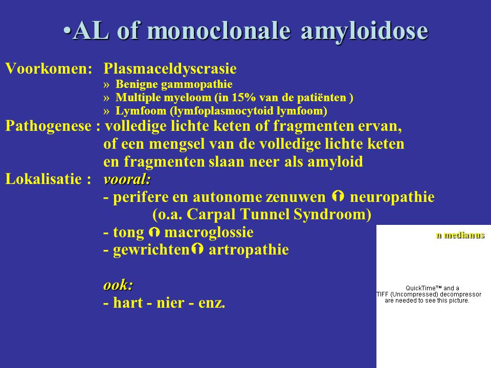 AL of monoclonale amyloidose