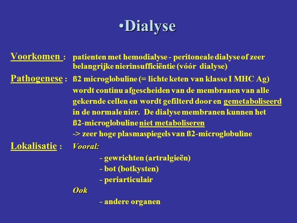 Dialyse Voorkomen : patienten met hemodialyse - peritoneale dialyse of zeer belangrijke nierinsufficiëntie (vóór dialyse)