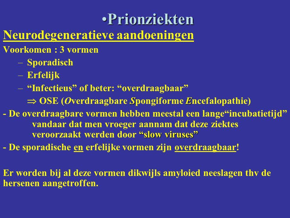 Prionziekten Neurodegeneratieve aandoeningen Voorkomen : 3 vormen
