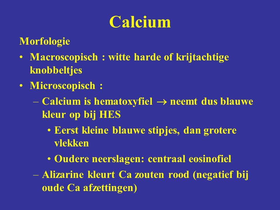 Calcium Morfologie. Macroscopisch : witte harde of krijtachtige knobbeltjes. Microscopisch :