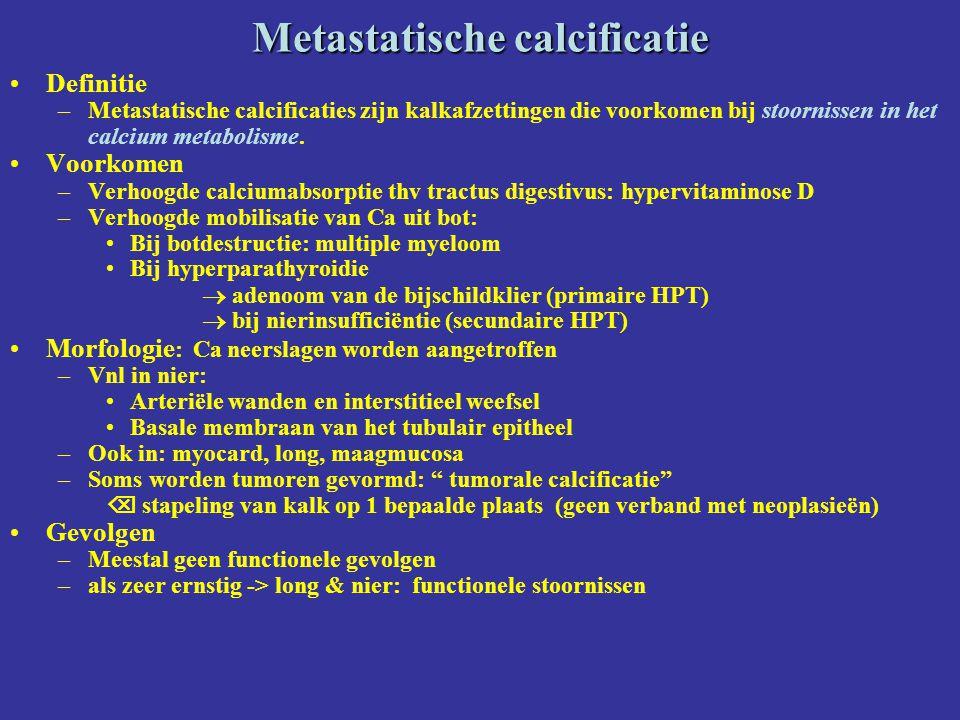 Metastatische calcificatie
