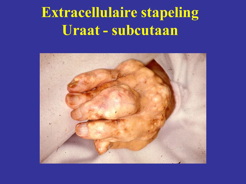 Extracellulaire stapeling Uraat - subcutaan