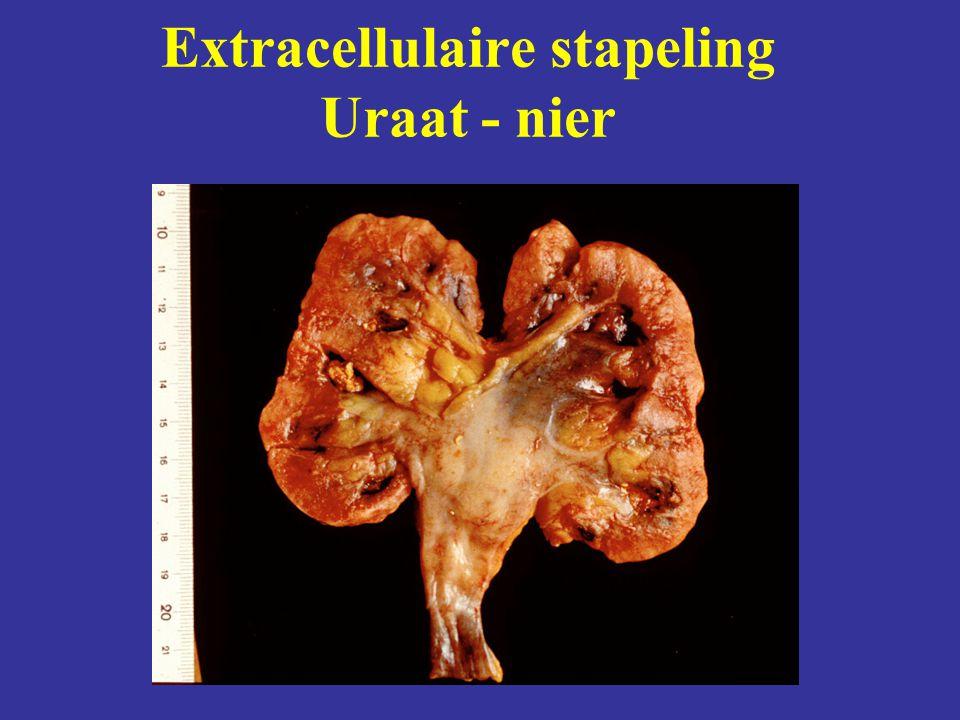 Extracellulaire stapeling Uraat - nier