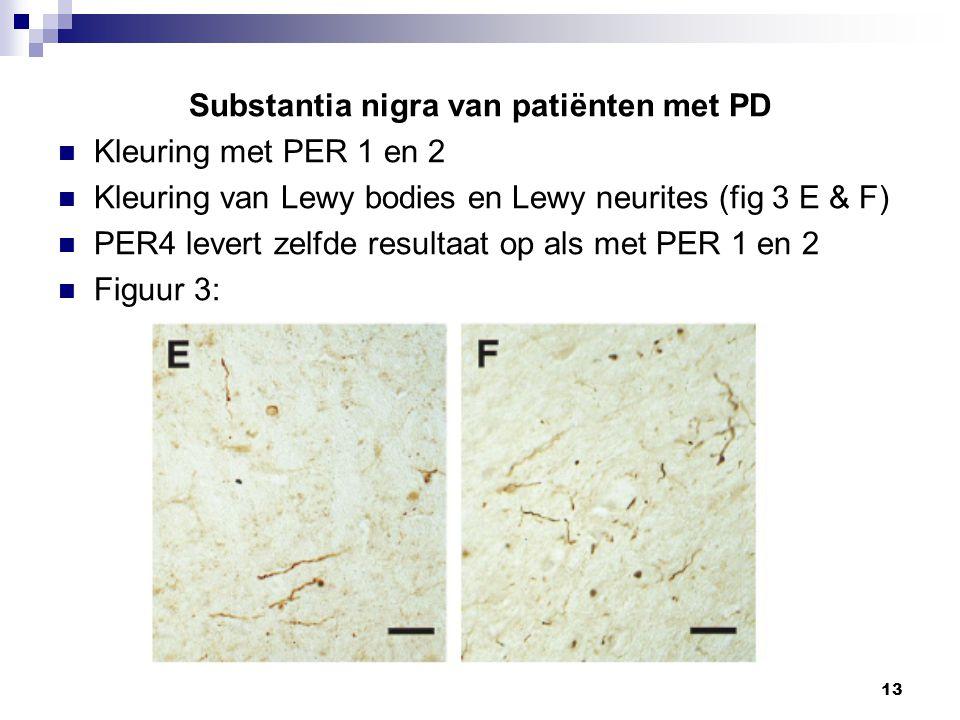 Substantia nigra van patiënten met PD