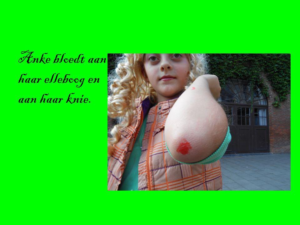 Anke bloedt aan haar elleboog en aan haar knie.