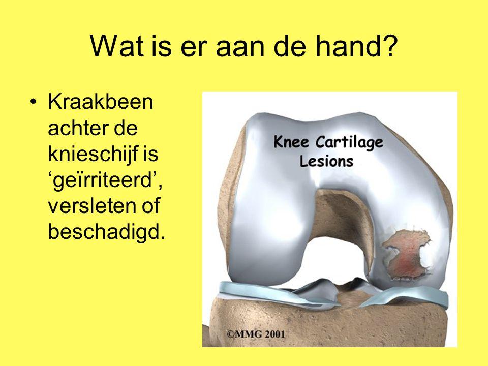 Wat is er aan de hand Kraakbeen achter de knieschijf is 'geïrriteerd', versleten of beschadigd.
